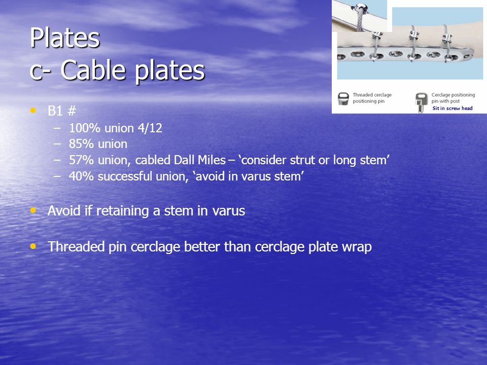 Plates c- Cable plates B1 # Avoid if retaining a stem in varus