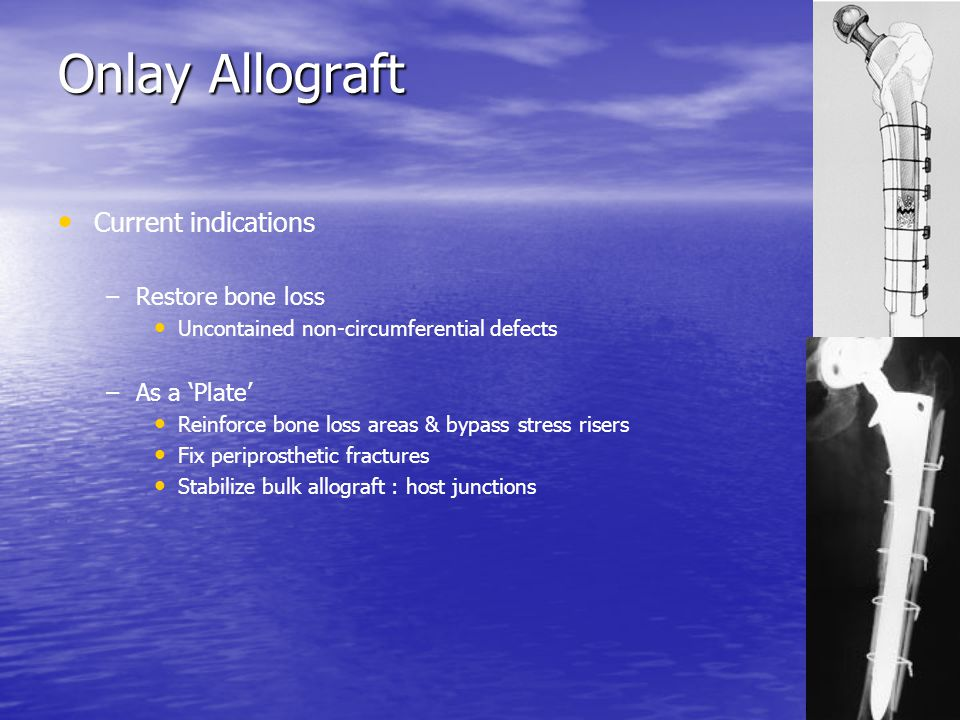 Onlay Allograft Current indications Restore bone loss As a 'Plate'