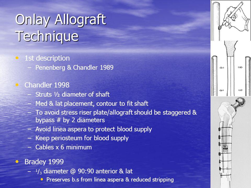 Onlay Allograft Technique