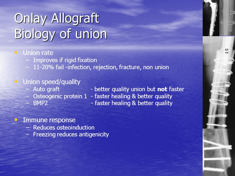 Onlay Allograft Biology of union