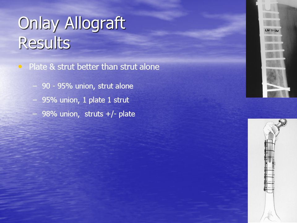 Onlay Allograft Results