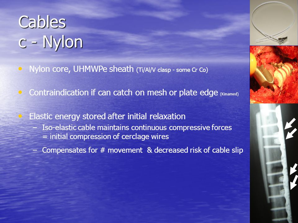 Cables c - Nylon Nylon core, UHMWPe sheath (Ti/Al/V clasp - some Cr Co) Contraindication if can catch on mesh or plate edge (Kinamed)