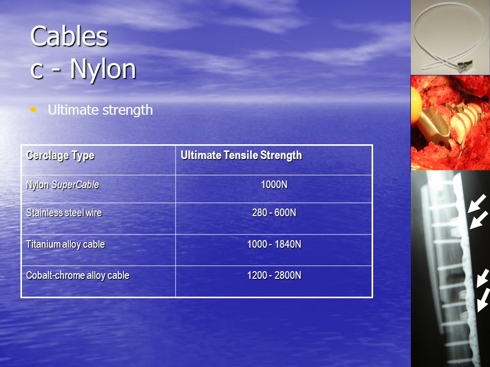 Cables c - Nylon Ultimate strength Cerclage Type