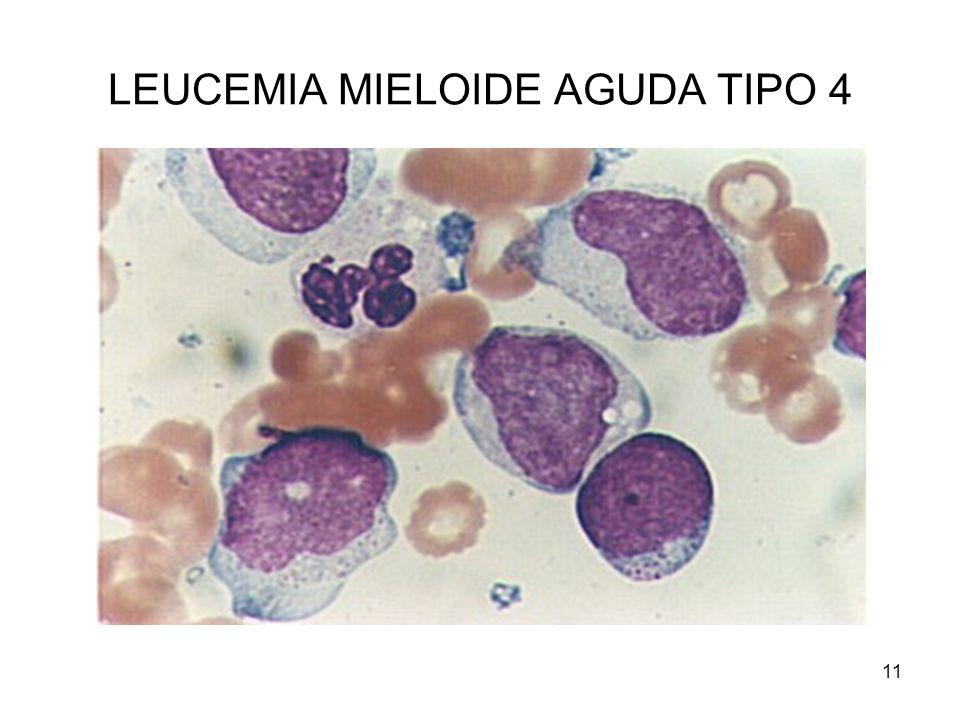 LEUCEMIA MIELOIDE AGUDA TIPO 4