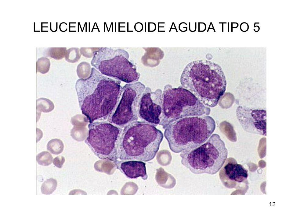 LEUCEMIA MIELOIDE AGUDA TIPO 5