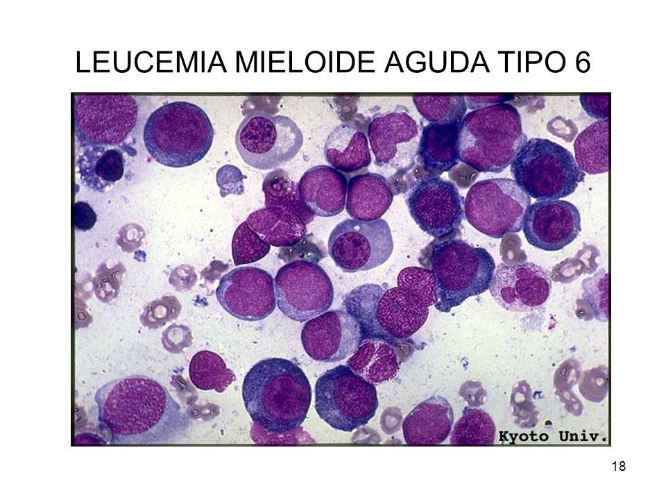 LEUCEMIA MIELOIDE AGUDA TIPO 6