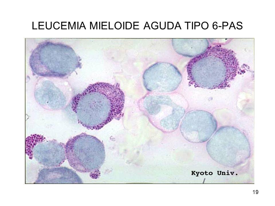 LEUCEMIA MIELOIDE AGUDA TIPO 6-PAS