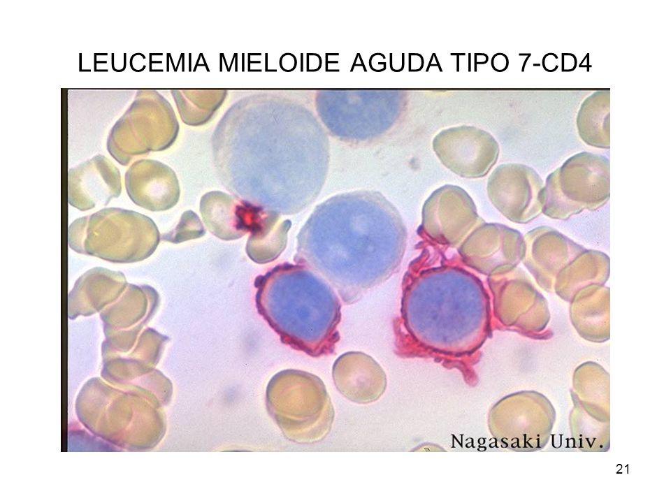 LEUCEMIA MIELOIDE AGUDA TIPO 7-CD4