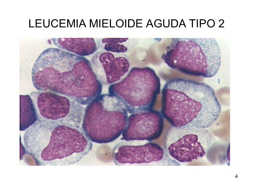 LEUCEMIA MIELOIDE AGUDA TIPO 2