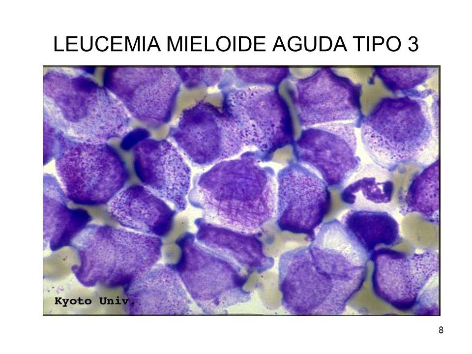 LEUCEMIA MIELOIDE AGUDA TIPO 3