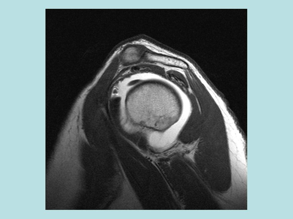 F:\Project2\anomalous supraspinatus 1\Subscap anatomy\sag MRA d.jpg
