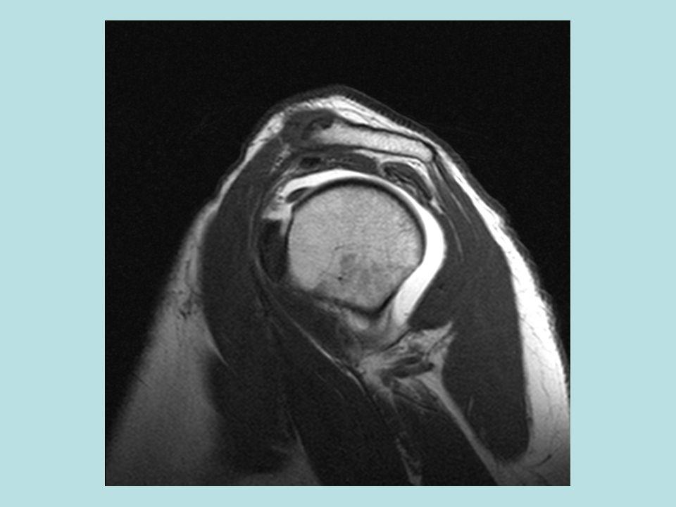 F:\Project2\anomalous supraspinatus 1\Subscap anatomy\sag MRA e.jpg