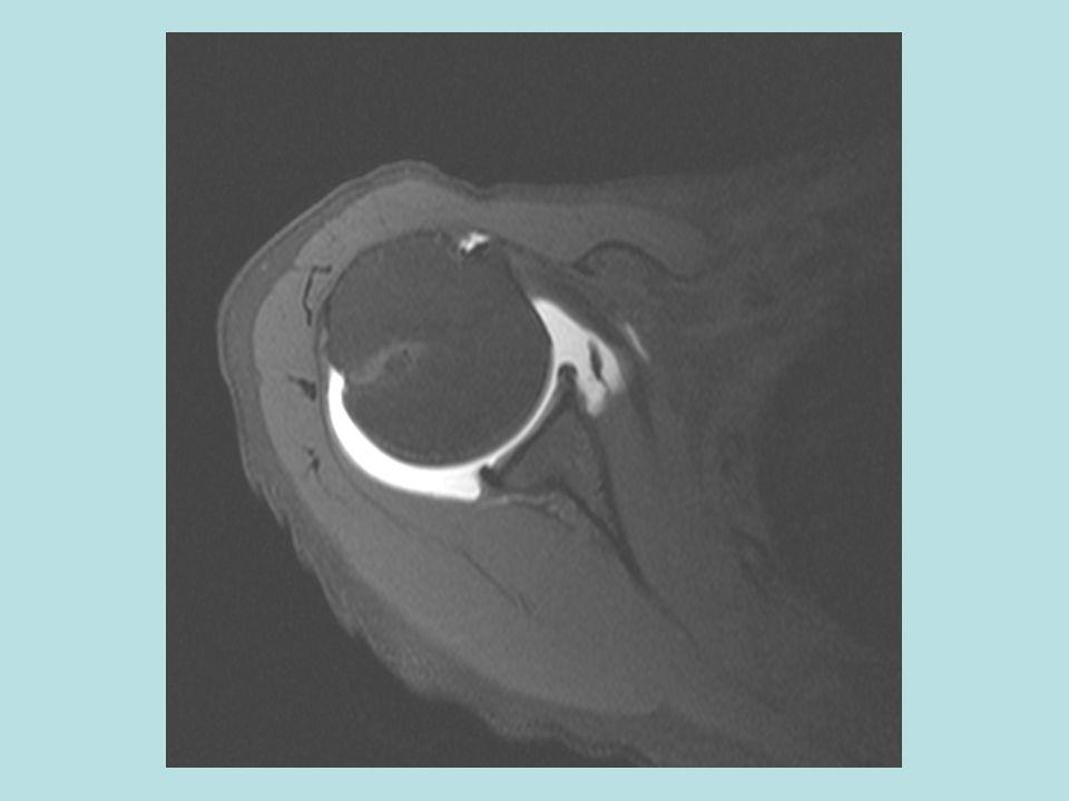 F:\Project2\anomalous supraspinatus 1\Subscap anatomy\axial MRA b.jpg