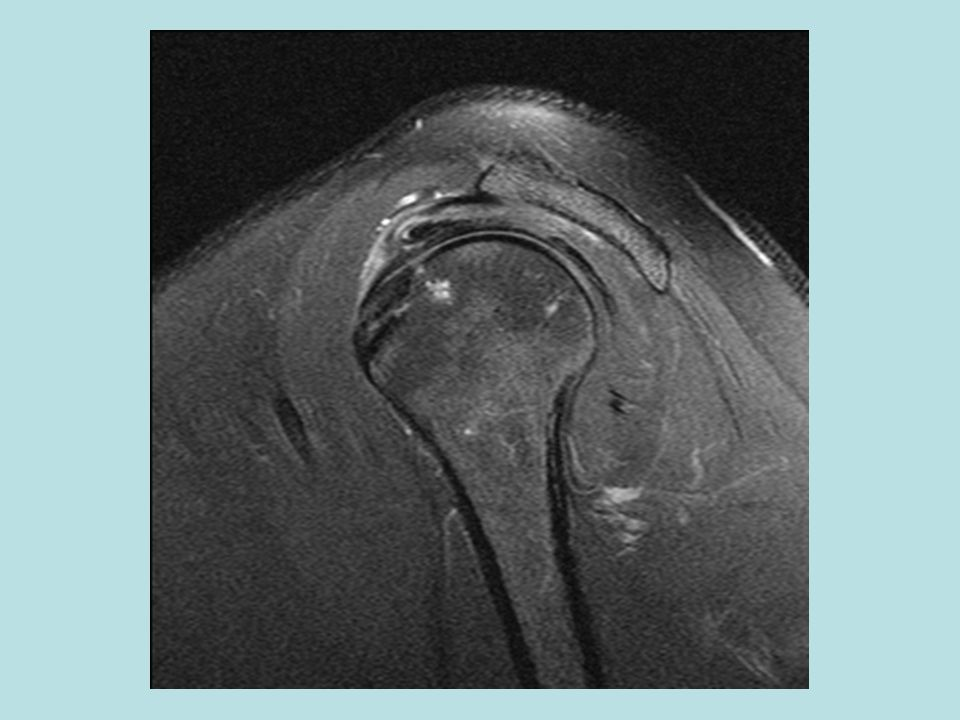 F:\Project2\anomalous supraspinatus 1\sagital Cuff layers\Sag PD FS with ant RI.jpg