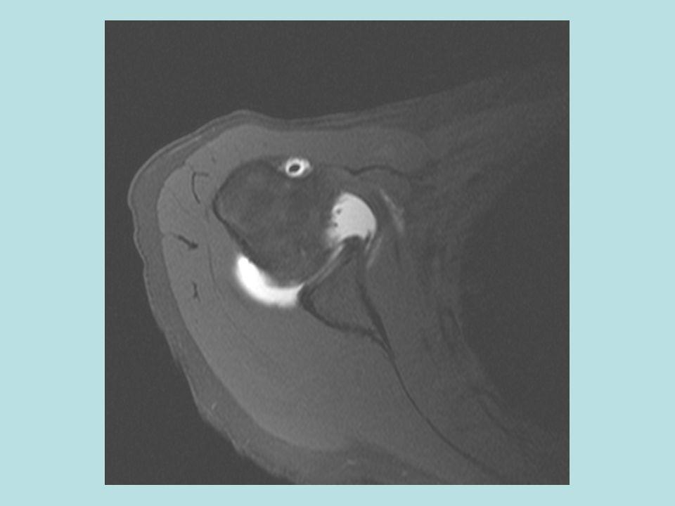 F:\Project2\anomalous supraspinatus 1\Subscap anatomy\axial MRA e.jpg
