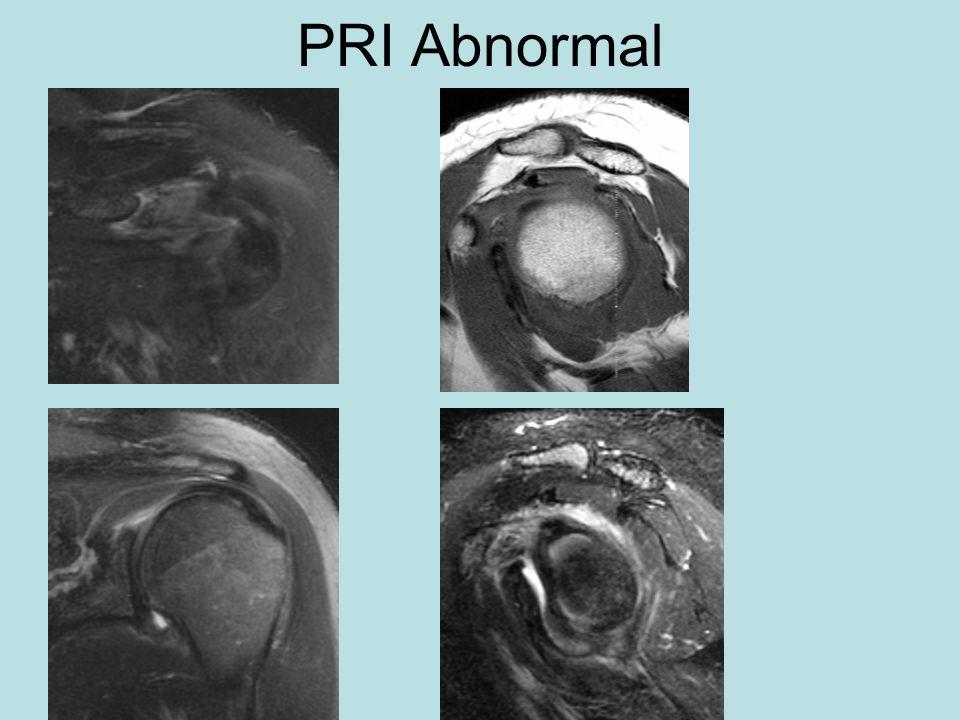 PRI Abnormal