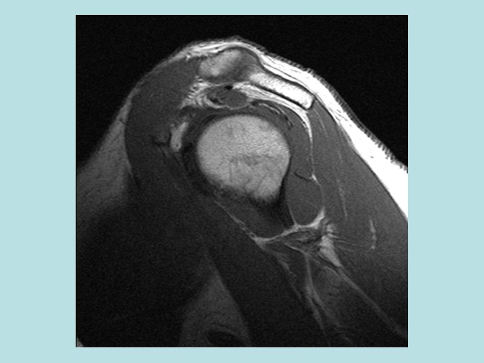 F:\Project2\anomalous supraspinatus 1\SagT1g.jpg