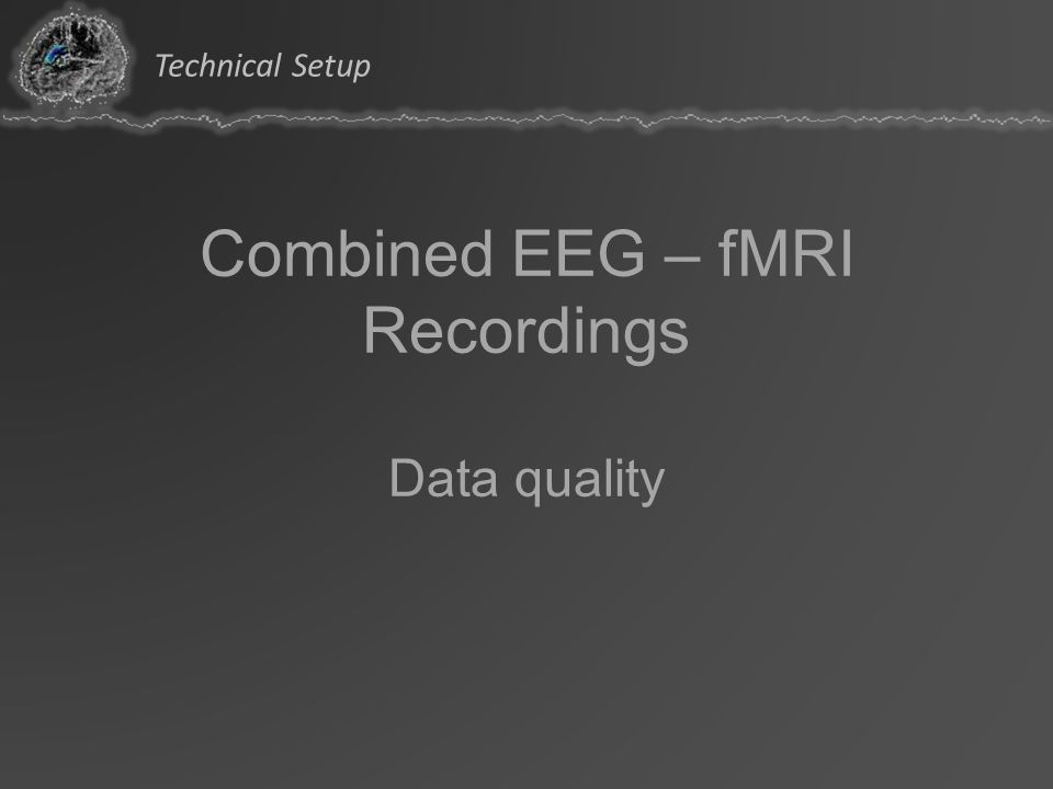 Combined EEG – fMRI Recordings Data quality