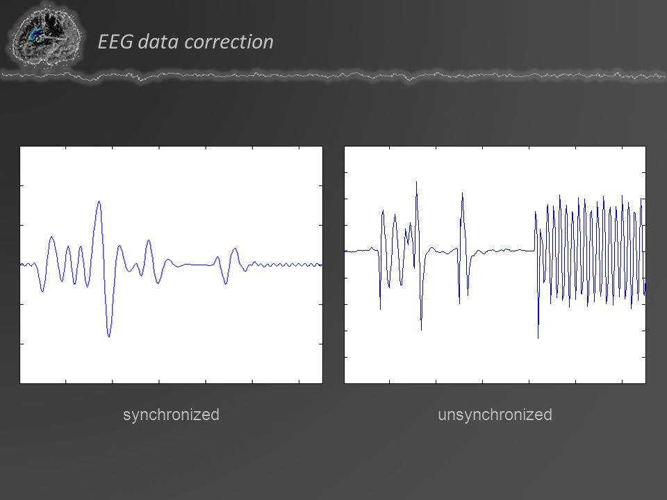 EEG data correction synchronized unsynchronized