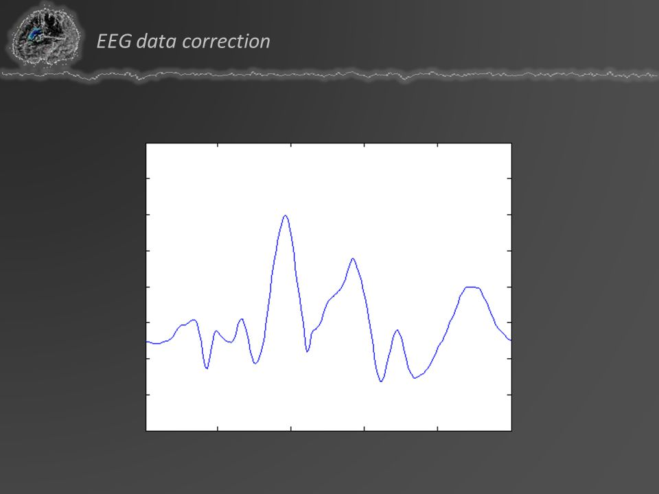 EEG data correction