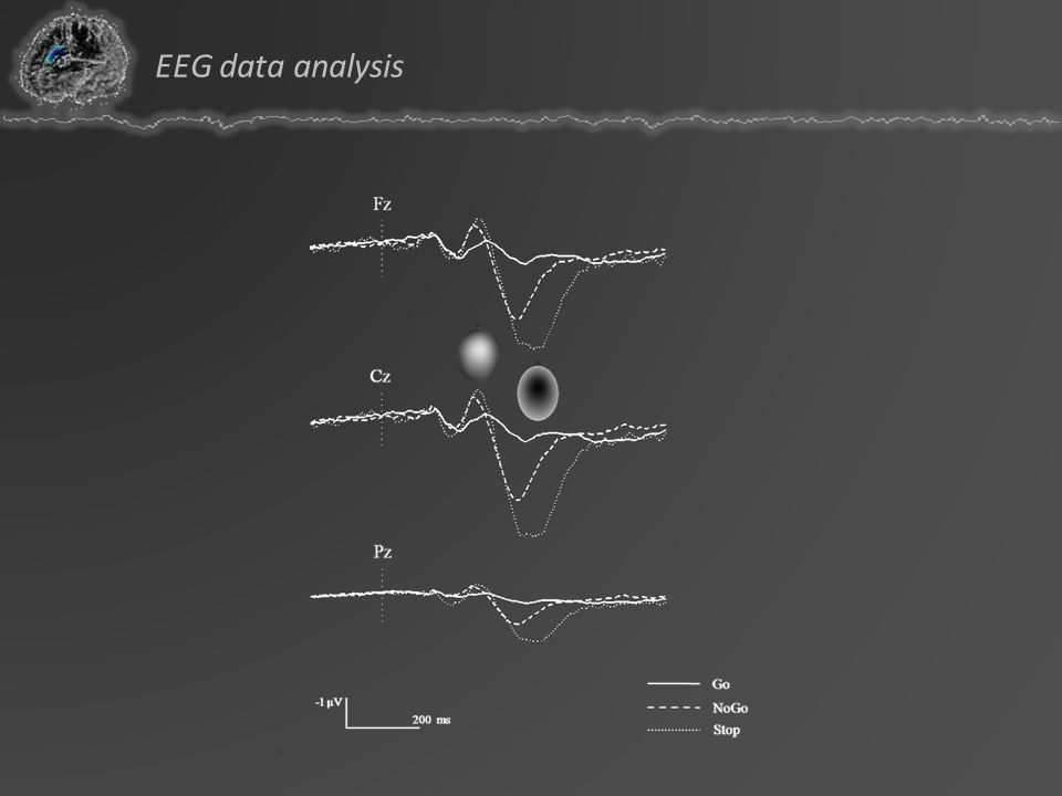 EEG data analysis