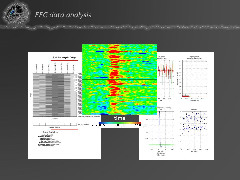 EEG data analysis amplitude time