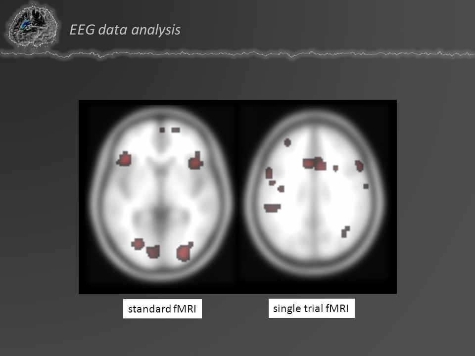 EEG data analysis standard fMRI single trial fMRI