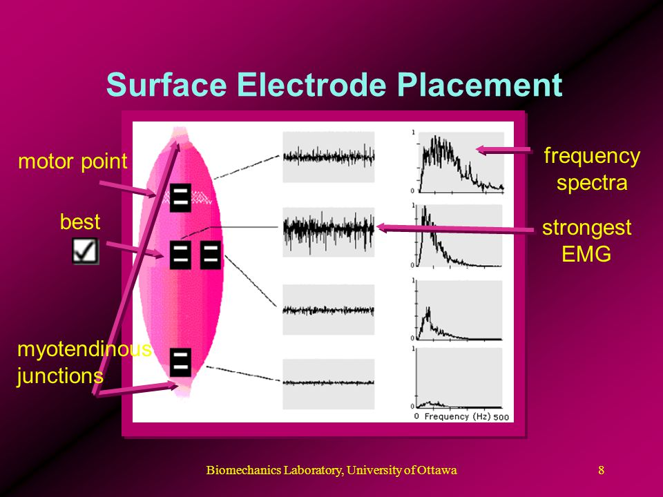 Surface Electrode Placement