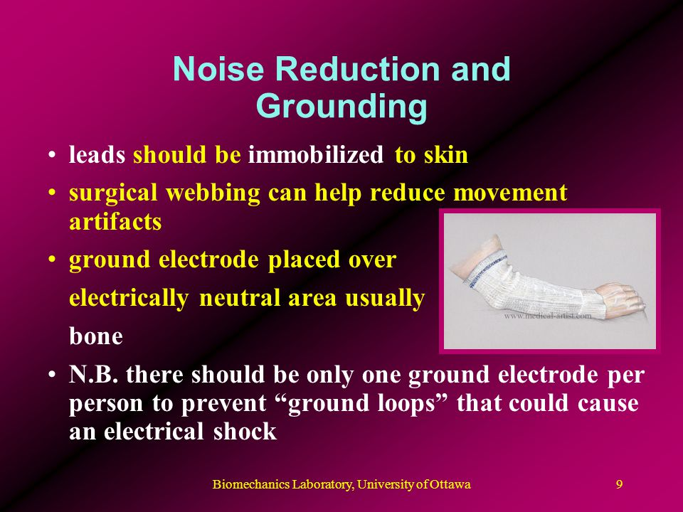 Noise Reduction and Grounding