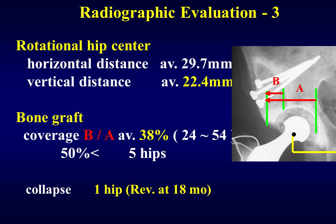 Radiographic Evaluation - 3
