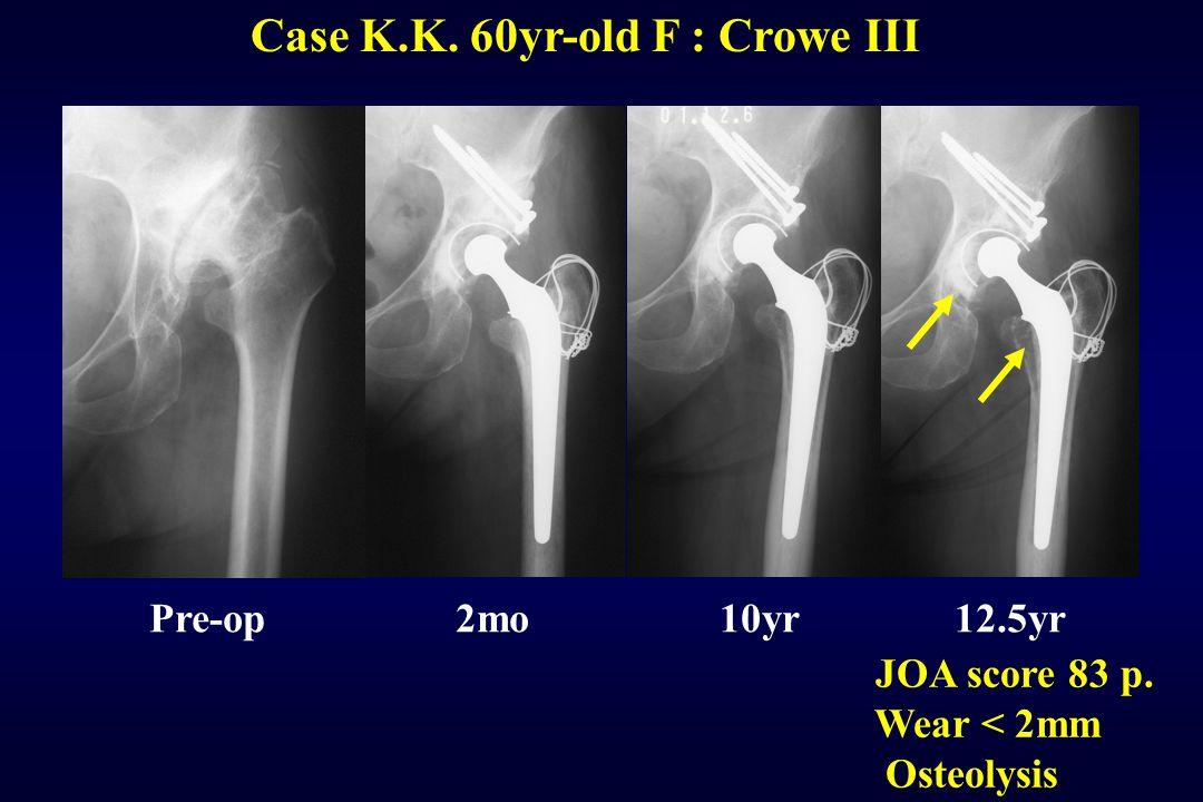 Case K.K. 60yr-old F : Crowe III