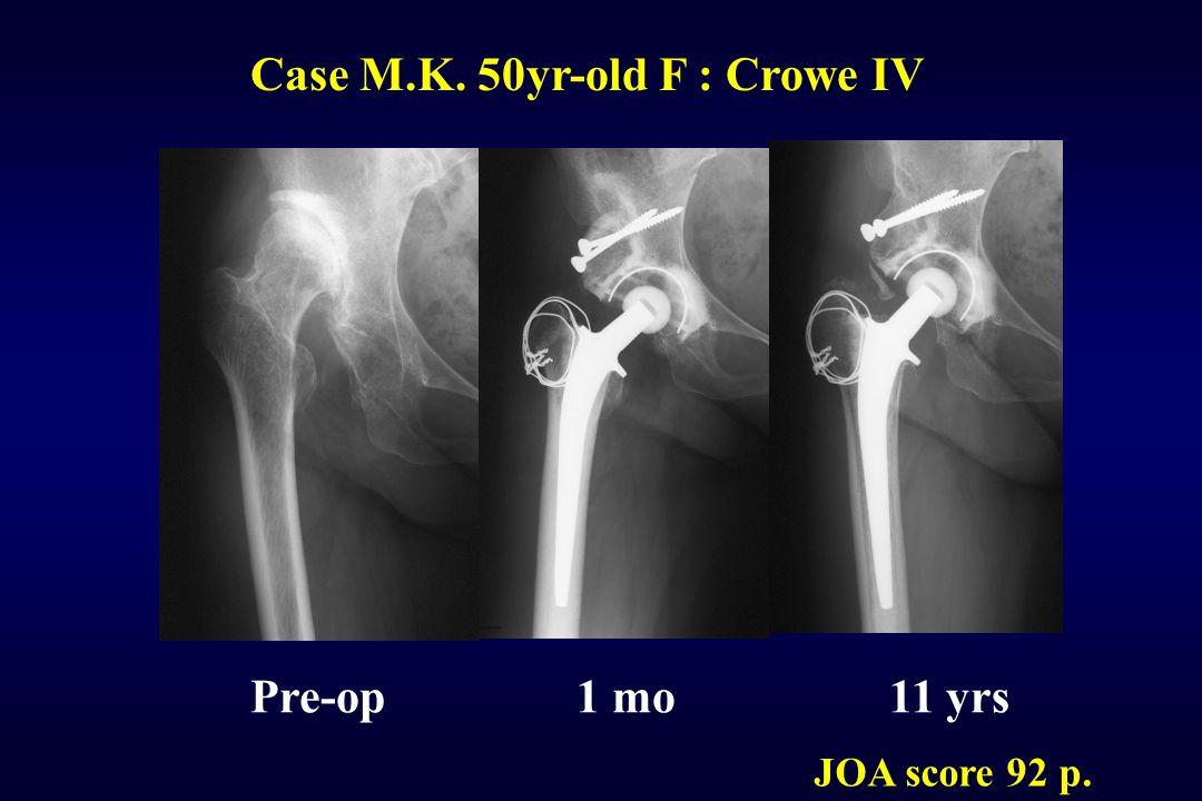 Case M.K. 50yr-old F : Crowe IV