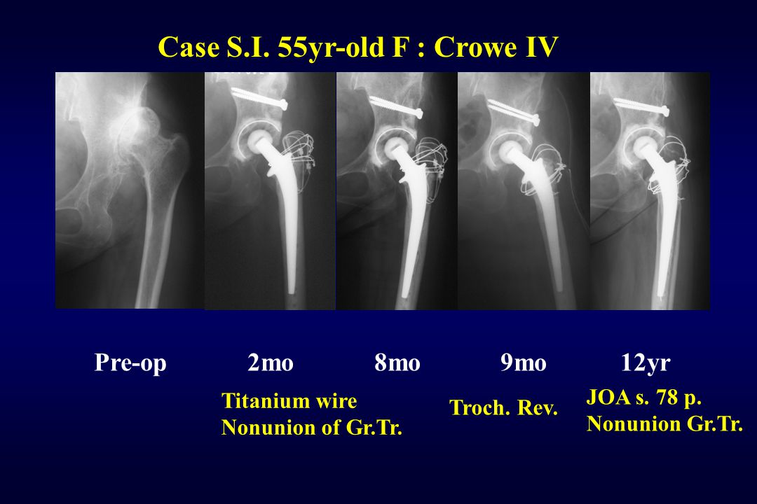 Case S.I. 55yr-old F : Crowe IV