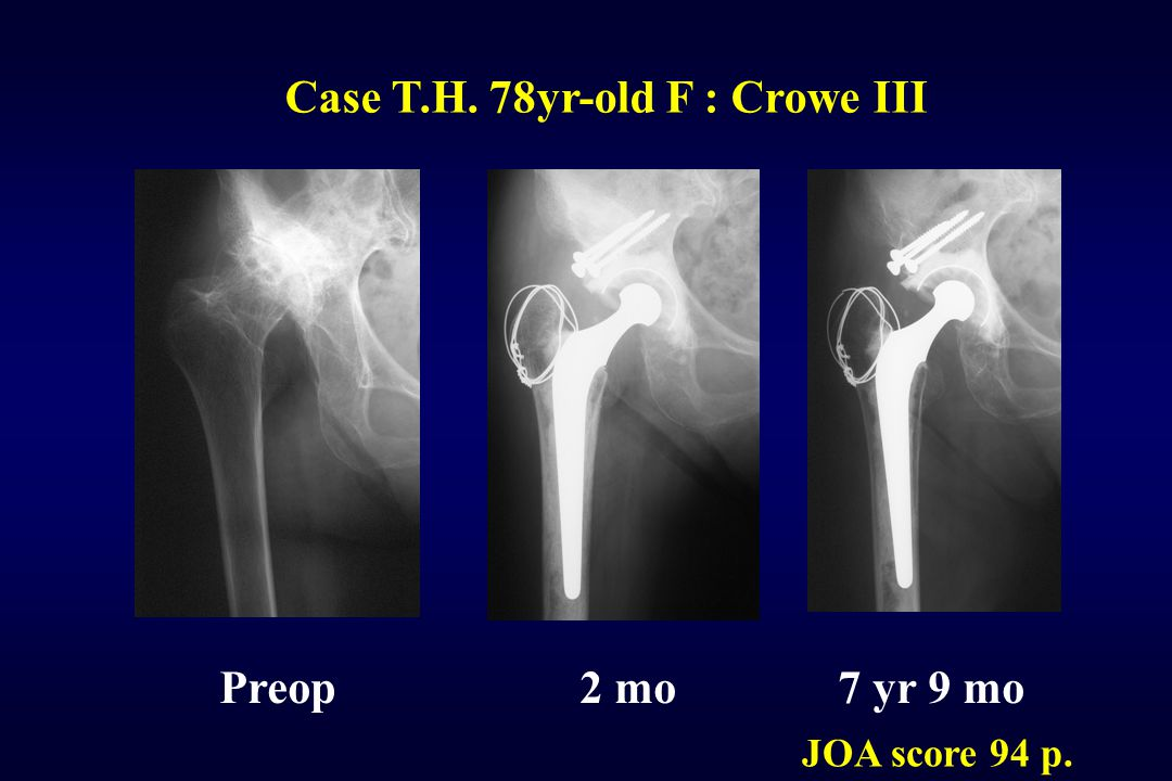 Case T.H. 78yr-old F : Crowe III