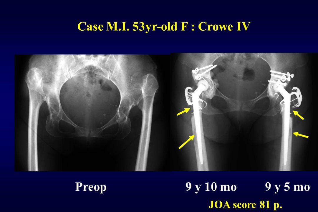 Case M.I. 53yr-old F : Crowe IV