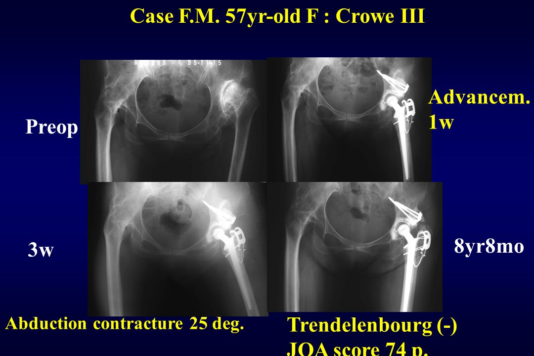 Case F.M. 57yr-old F : Crowe III