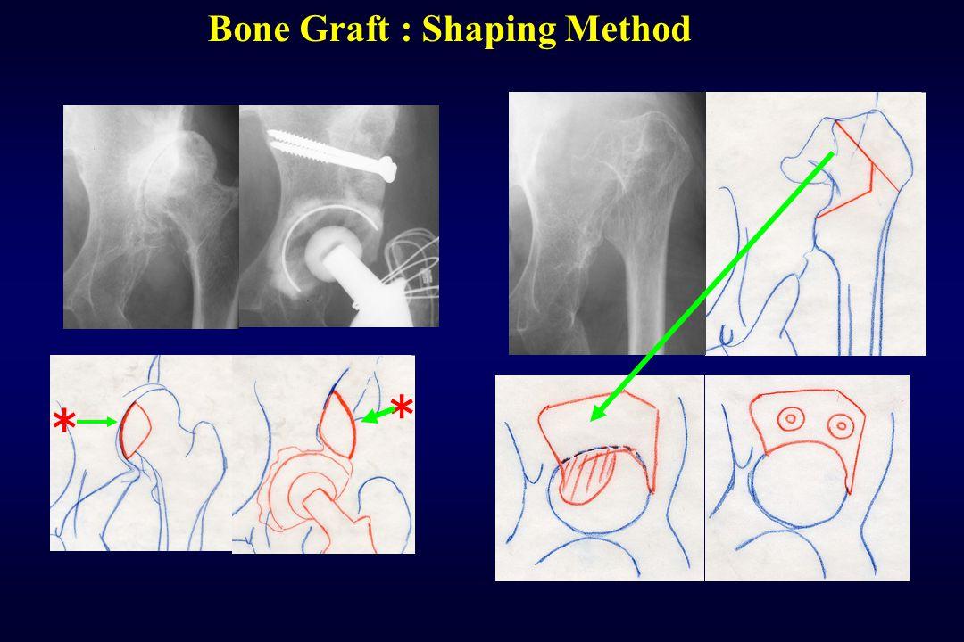 Bone Graft : Shaping Method