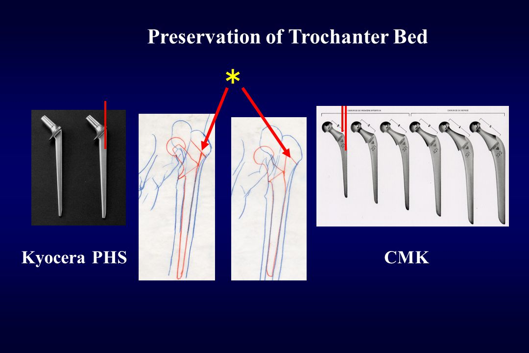 * Preservation of Trochanter Bed Kyocera PHS CMK Conclusions
