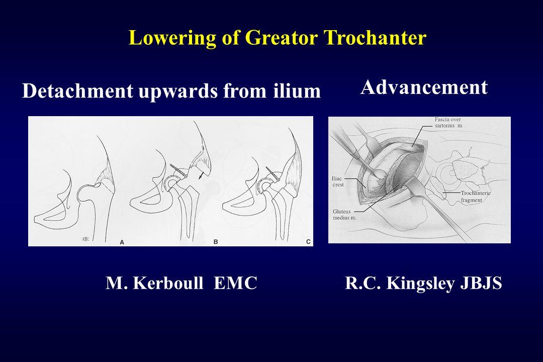 Lowering of Greator Trochanter