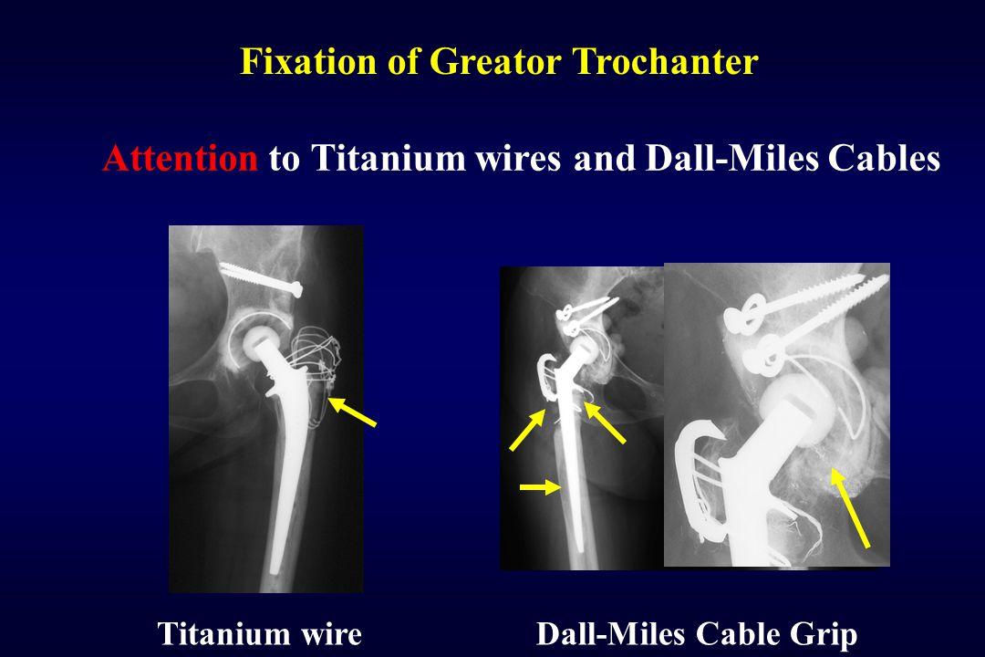Fixation of Greator Trochanter
