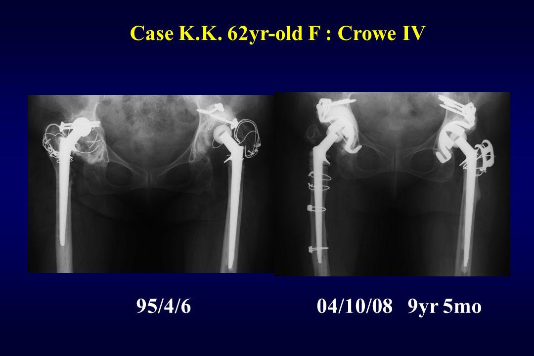 Case K.K. 62yr-old F : Crowe IV