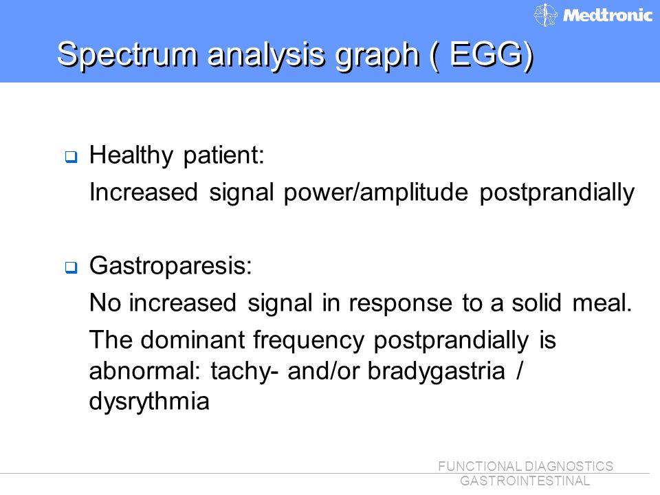 Spectrum analysis graph ( EGG)