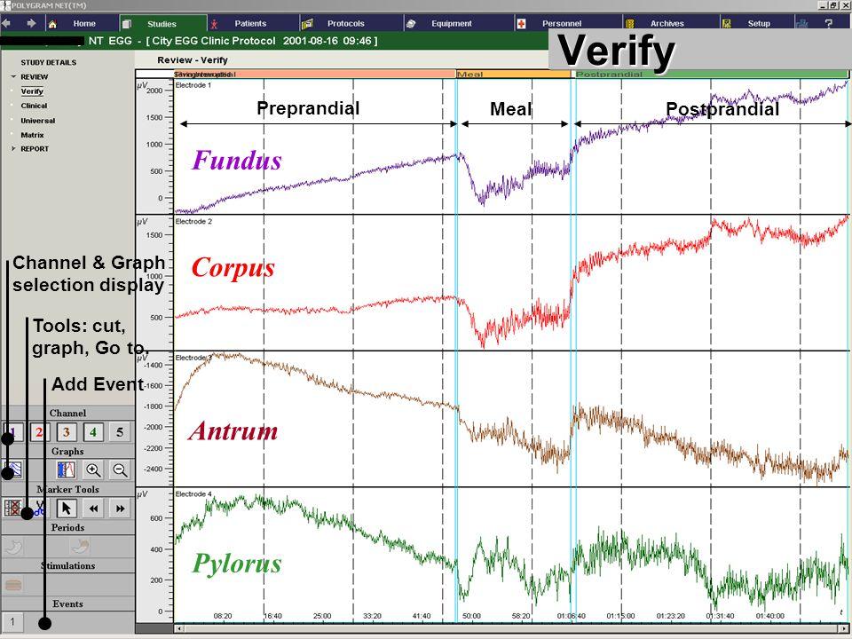Verify Fundus Corpus Antrum Pylorus Preprandial Meal Postprandial
