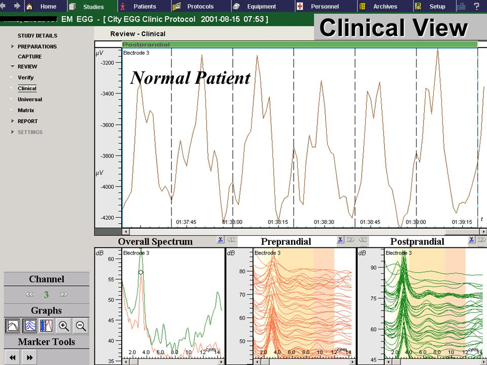 Clinical View Normal Patient