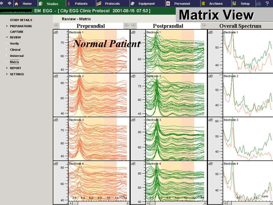 Matrix View Normal Patient