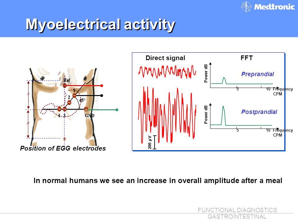 Myoelectrical activity