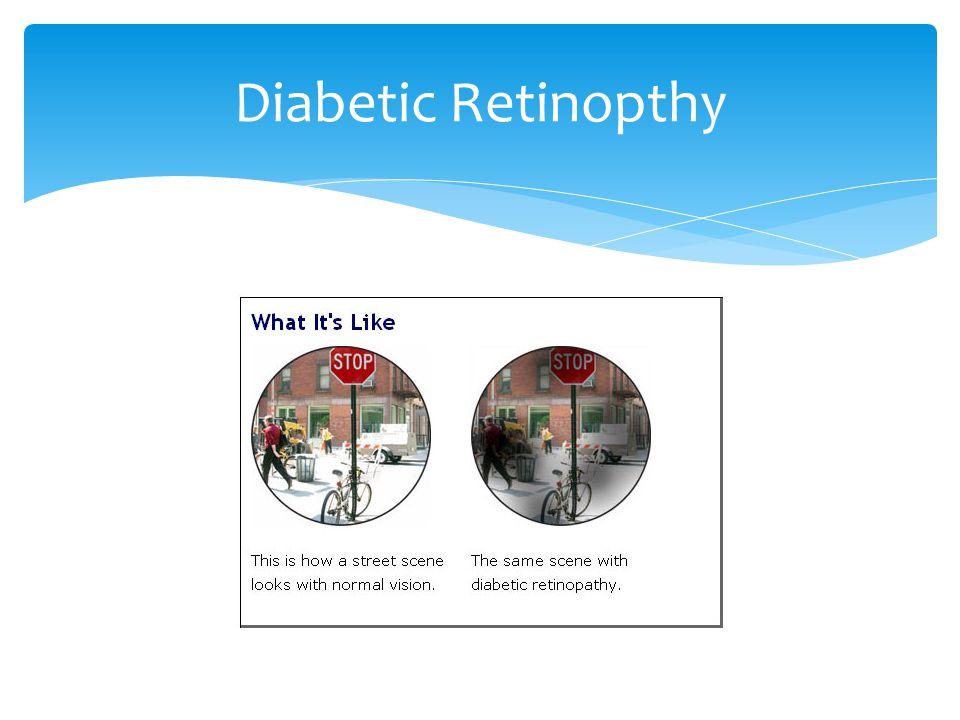 Diabetic Retinopthy
