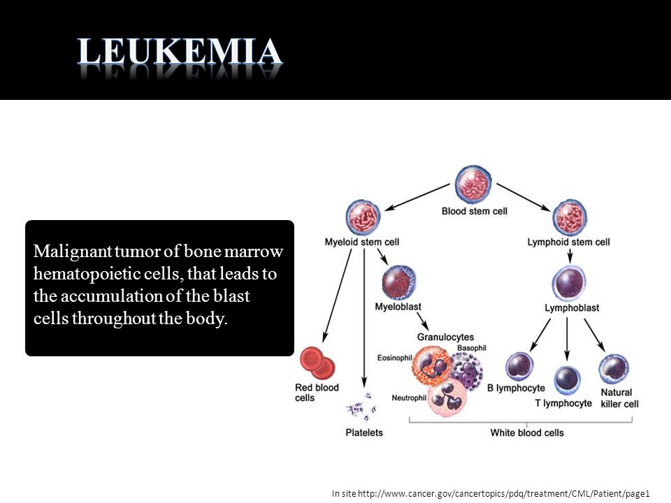 leukemia Malignant tumor of bone marrow hematopoietic cells, that leads to the accumulation of the blast cells throughout the body.