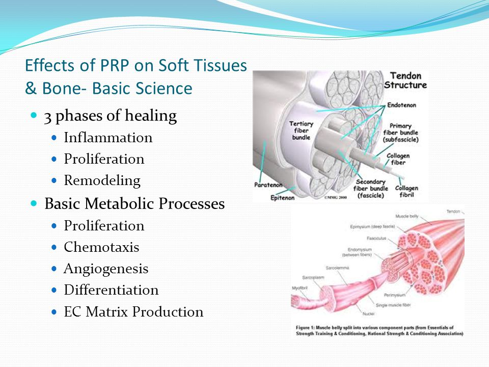 Effects of PRP on Soft Tissues & Bone- Basic Science