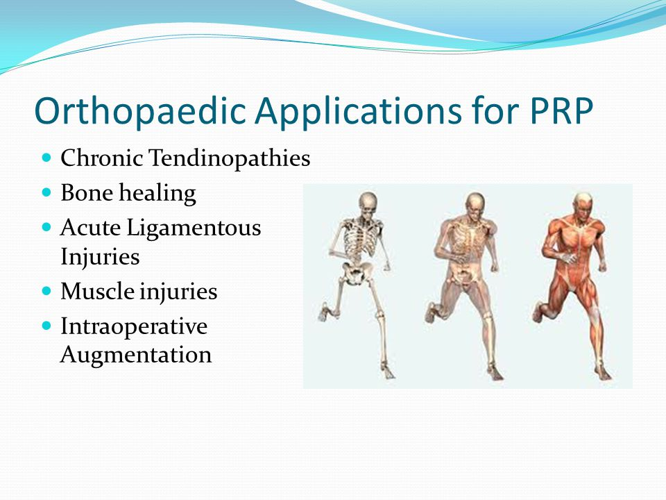 Orthopaedic Applications for PRP